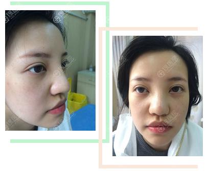 上海丽质卢九宁隆鼻案例7天拆线效果图