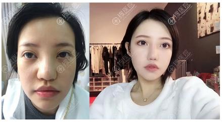 上海丽质卢九宁医生隆鼻案例前后对比图