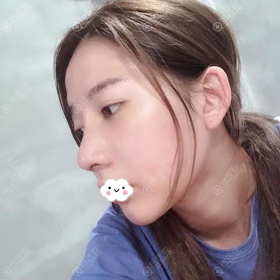 宁波薇琳张广巍进口假体+肋软骨隆鼻综合整形效果