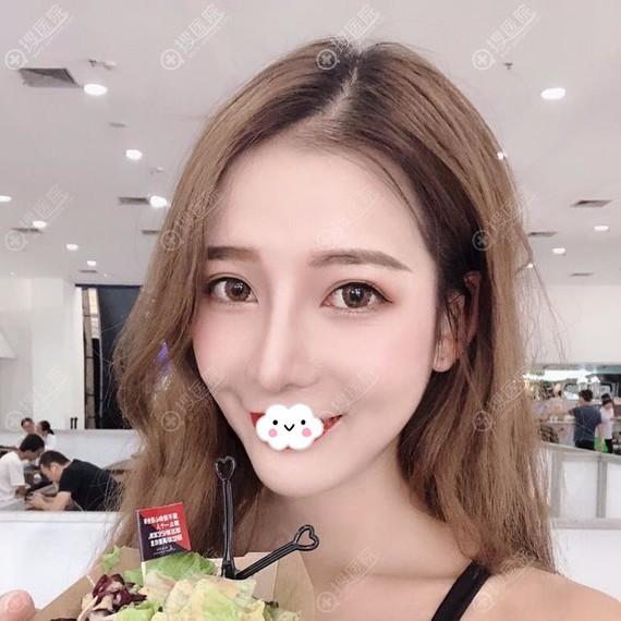 宁波薇琳张广巍鼻综合术后恢复效果