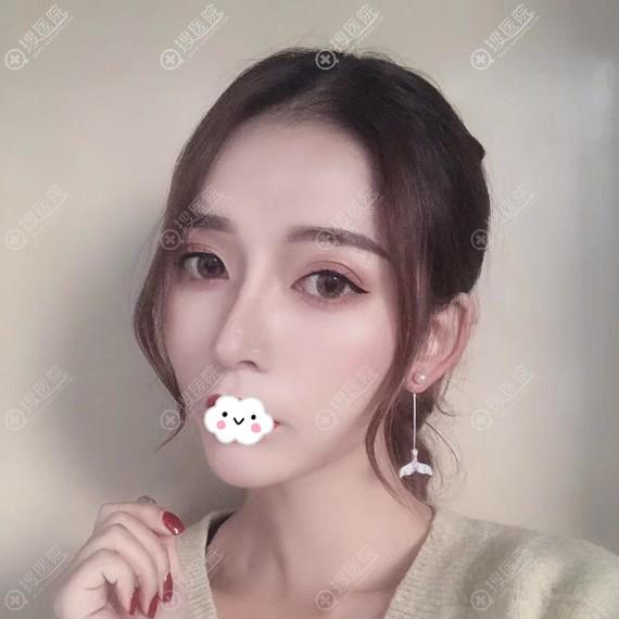 宁波薇琳张广巍假体+自体软骨隆鼻案例恢复图