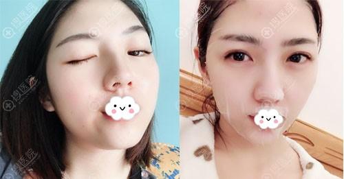 广州名韩樊佳佳双眼皮案例