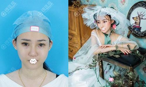 广州名韩彭丽霞鼻综合隆鼻案例对比图