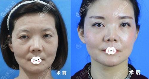 广州名韩自体脂肪面部填充案例效果对比图