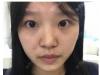 这是我去西安同济医院整形美容科做完双眼皮后拿到的收费价格表