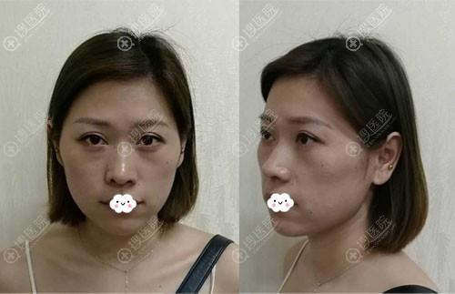 杭州时光黄良飞自体脂肪面部填充真人案例