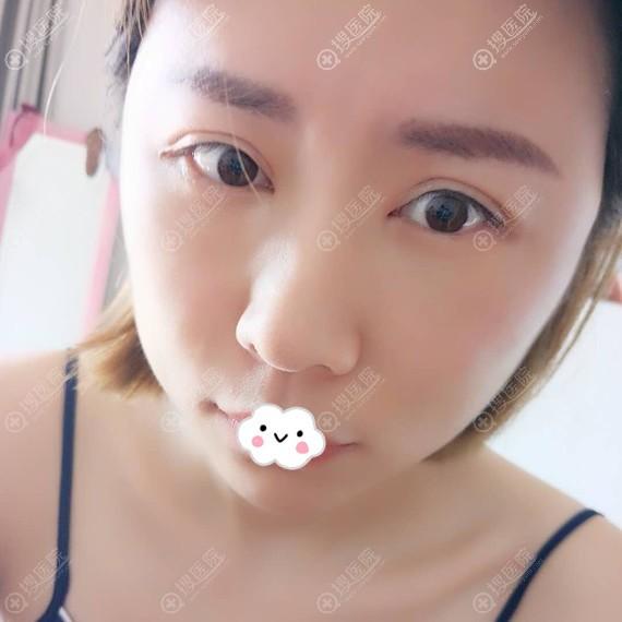 杭州时光自体脂肪面部填充效果怎么样?黄良飞案例