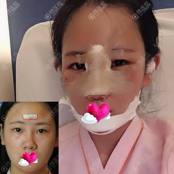 重庆艺星做隆鼻垫下巴术前和术后2天