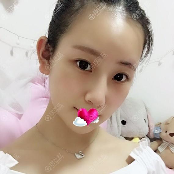 重庆艺星做隆鼻垫下巴恢复一个月