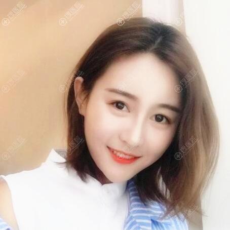 杭州美莱韩超主任隆鼻子+脂肪填充案例