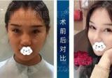 选择找重庆联合丽格党宁给我做鼻综合手术只因我不愿将就