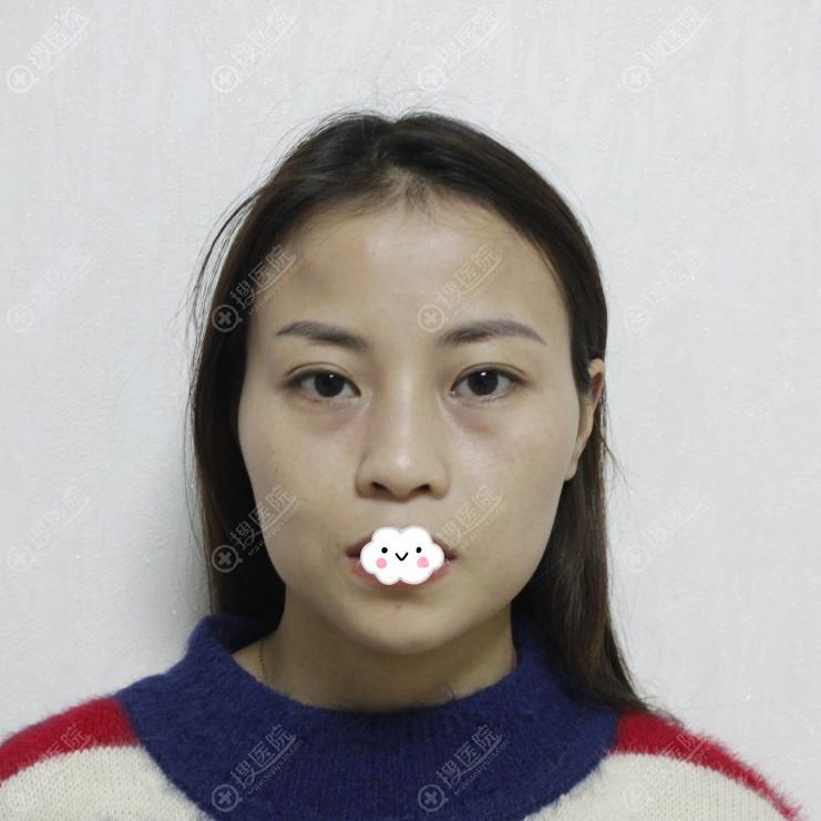 成都艾米丽潘红伟自体脂肪面部填充案例