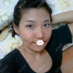广州曙光万友望自体脂肪面部填充案例恢复图