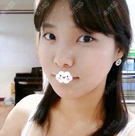 广州曙光自体脂肪面部填充怎么样?万友望案例