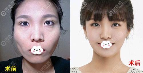 广州曙光万友望自体脂肪面部填充前后效果对比图