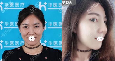 呼和浩特华医赵彦波膨体隆鼻真人案例
