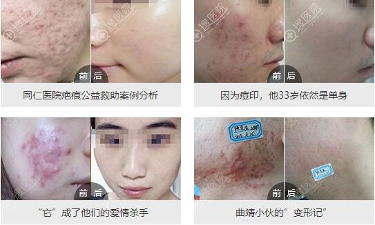 北京同仁青春痘疤痕效果明显