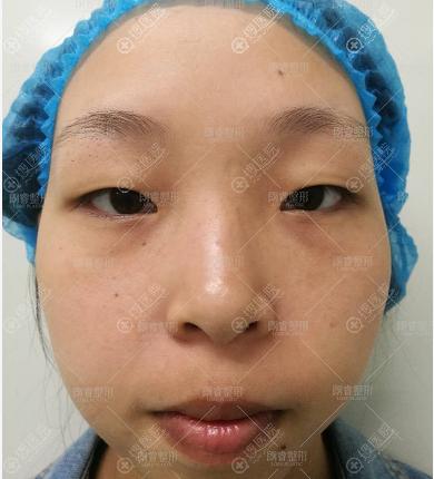 四川广元朗睿双眼皮案例术前照片