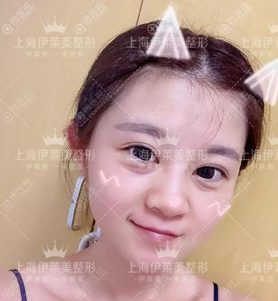 上海伊莱美祛眼袋价格6800元