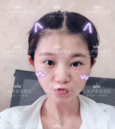 上海伊莱美祛眼袋案例术后真实效果图