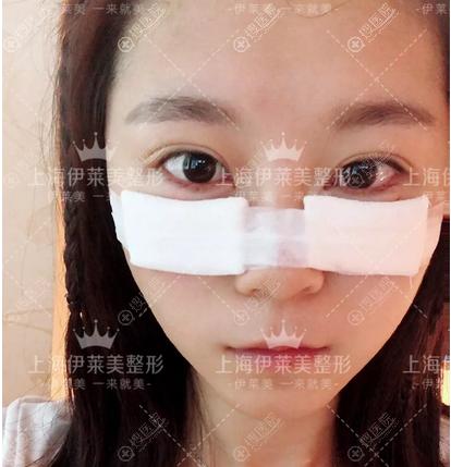 上海伊莱美祛眼袋平泪沟真实案例