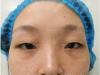 今天找四川广元朗睿刘锋复查完双眼皮拿到一份2019年整形价格表