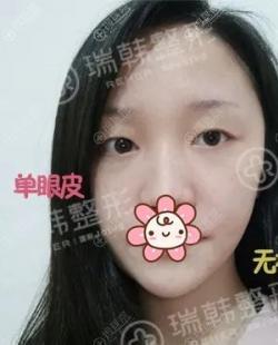 多亏了海南瑞韩林晓燕给我做双眼皮手术我才从大小眼变萝莉大眼
