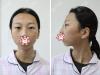 成都军大整形美容医院双眼皮+垫下巴手术成就凸嘴少女的逆袭