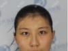 去石家庄蓝山医美找王兴奎做全切双眼皮的同时还做了脂肪填充