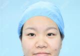 好不容易才预约到上海美莱卢建医生在周六给我做双眼皮隆鼻手术