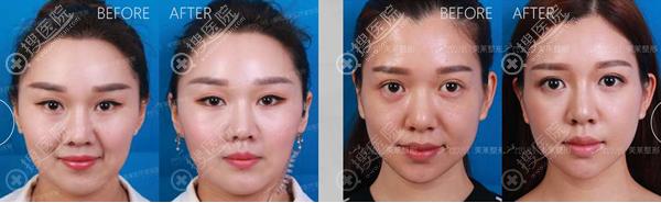 黄海龙玻尿酸除皱、玻尿酸全脸精雕术后对比图