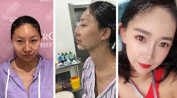 北京悦然李京霖鼻修复和脂肪填充案例