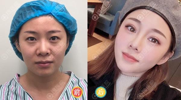 北京悦然李京霖隆鼻和双眼皮案例
