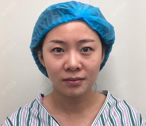 在北京悦然医美做隆鼻手术前