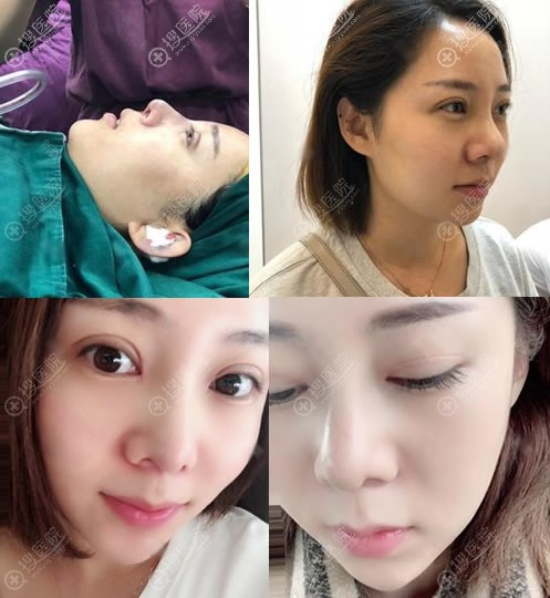 北京悦然医美眼鼻综合案例恢复图
