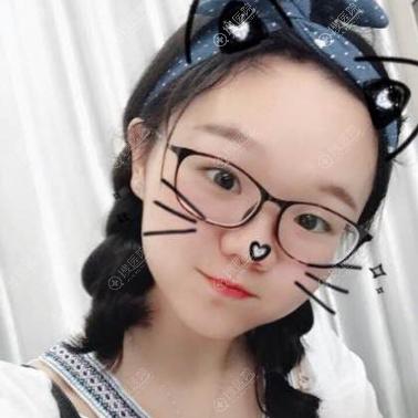 上海虹桥医院疤痕科单兴柱做的面部疤痕祛除案例
