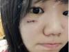 脸上留疤后我去上海虹桥医院疤痕科找单兴柱做了面部疤痕去除