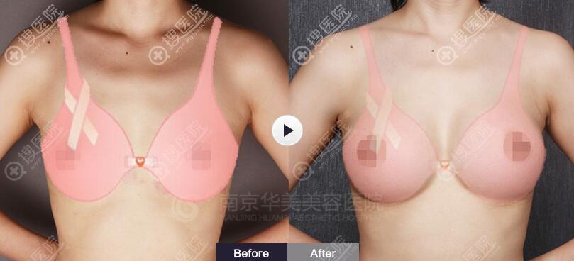 南京华美整形假体隆胸术前术后效果对比