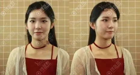北京艺星整形自体脂肪填充前