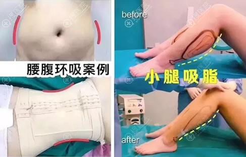 北京yestar艺星腰腹和小腿吸脂案例