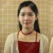 北京艺星通过吸脂和童颜胶填充实现了又想瘦又想美的生日愿望