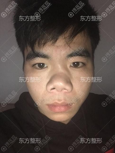 南宁东方整形歪鼻矫正手术对象