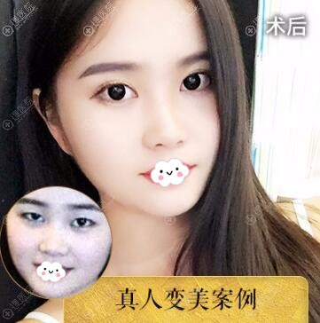 中信惠州医院罗秋雄双眼皮案例前后效果对比图