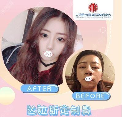 中信惠州医院罗秋雄达拉斯定制鼻综合案例前后效果对比图