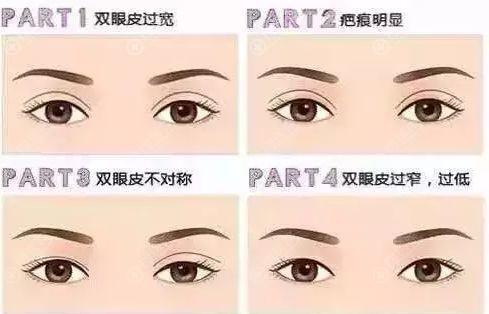 容易出现的眼部问题