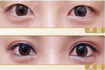 王洁双眼皮术前术后效果对比