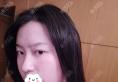 我找重庆时光河东镐做下颌角整形亲身经历告诉你术后多久消肿?
