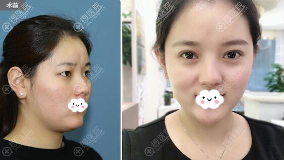 西安顺美许龙顺双眼皮术后效果