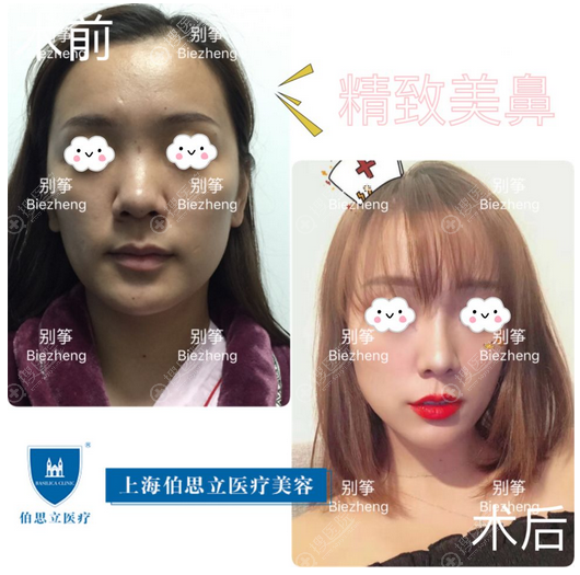 上海伯思立(百达丽)别筝主任肋软骨隆鼻案例