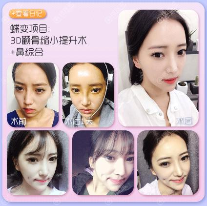 上海DA.美联臣刘先超做的颧骨内推和隆鼻案例